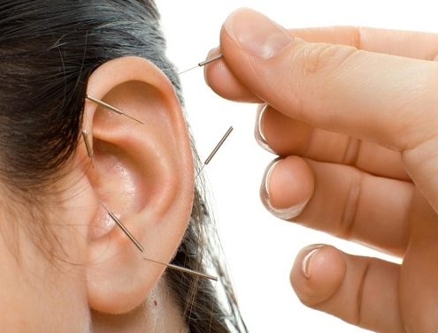 acupuncture-for-alcoholism-and-depression